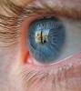 Грыжа глаз: медицинская или косметическая проблема?