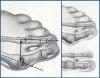 Лечение поперечного плоскостопия
