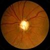 Глаукома. Причины. Симптомы. Диагностика. Лечение.
