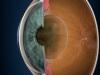 Новые стандарты диагностики и лечения глазных заболеваний