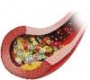 Нарушения гемостаз при беременности (тромбофилия беременных)
